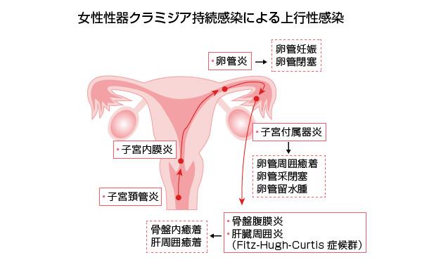 女性性器クラミジア持続感染による上行性感染の図
