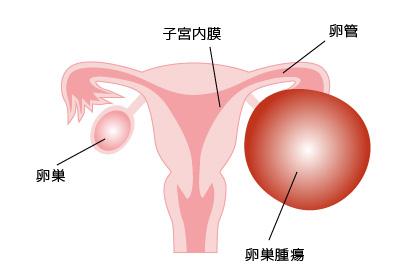 下腹部痛の図
