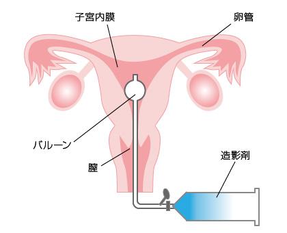 子宮卵管造影の図